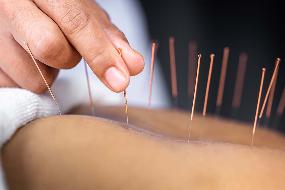 Acupuncture Specialist High Wycombe | Oakwood Wellbeing