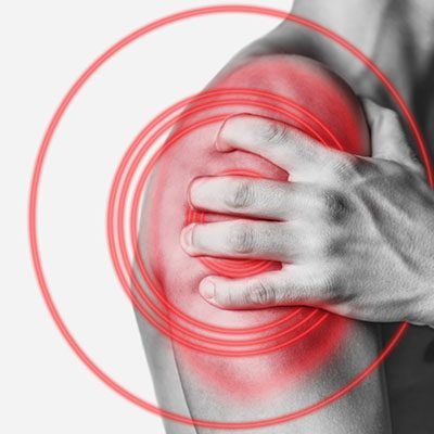 Sports Injury Therapy High Wycombe | Oakwood Wellbeing